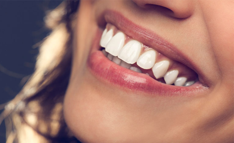 Hollywood Smile - Tooth Loss Rescue!