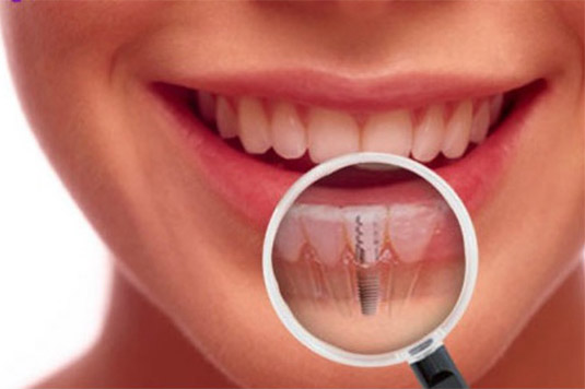 dental implants - How Important A Dental Implant Is?
